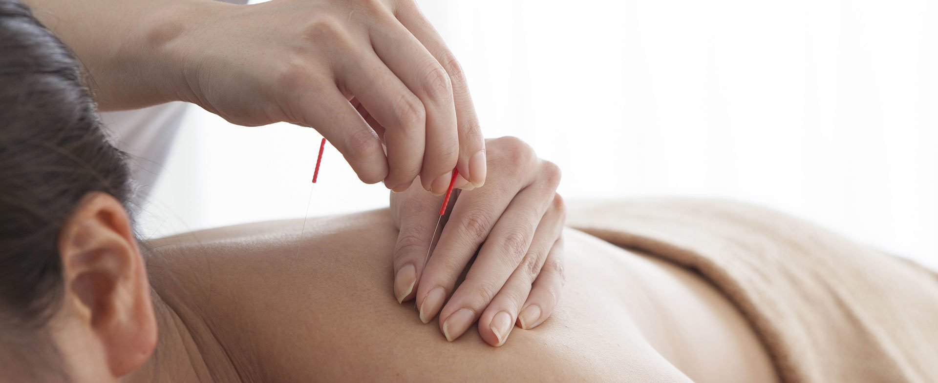 Acupuncture For Beginners | Henry Ford LiveWell