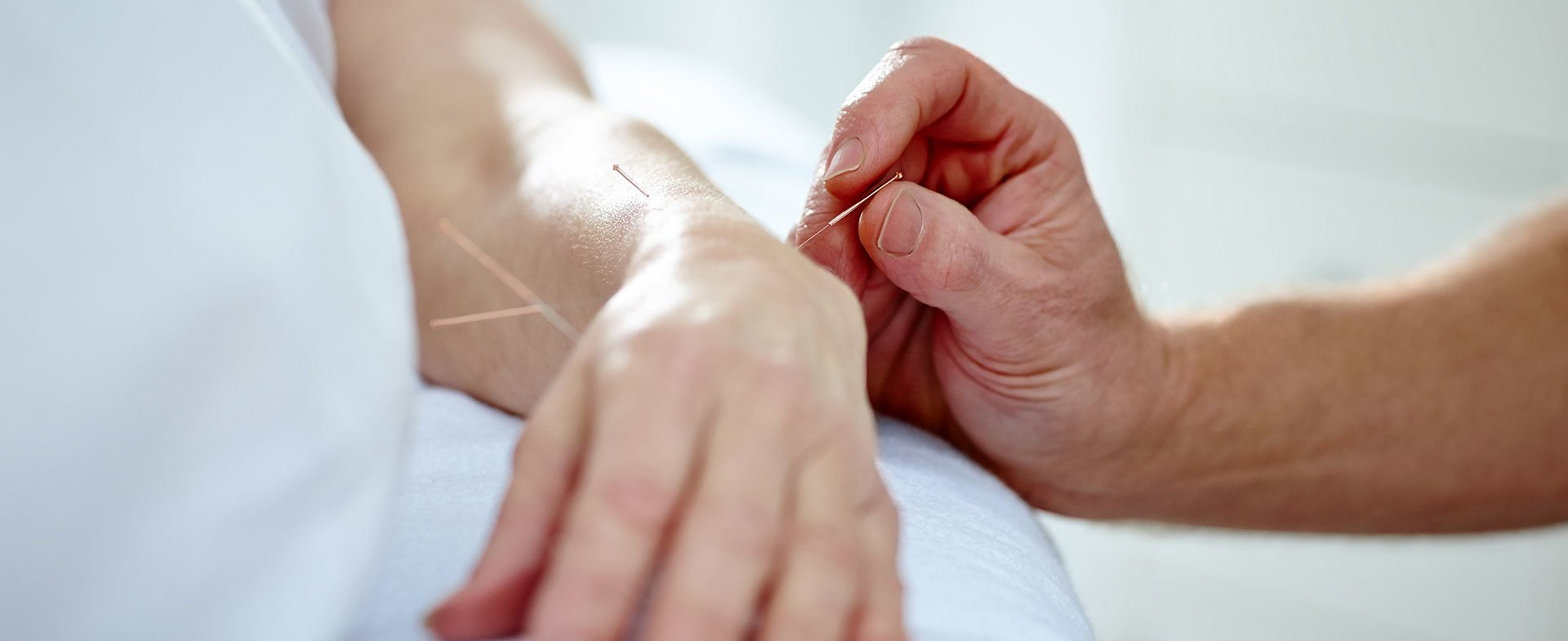 acupuncture peripherial neuropathy