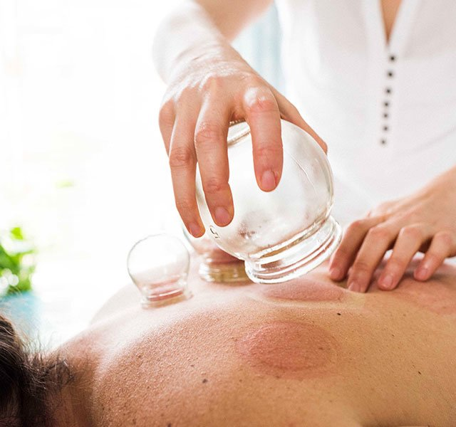 Cupping Treatment: What Is Cupping Therapy?