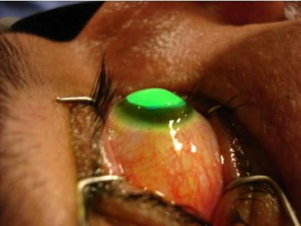 Cornea Research