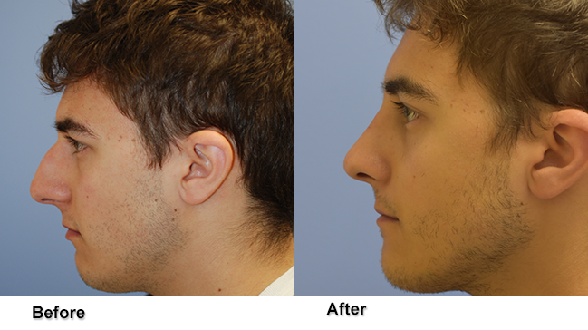 jones rhinoplasty 1