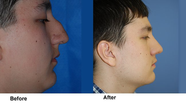 Dr. Jones Before and After Rhinoplasty