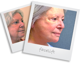 polaroid facelift
