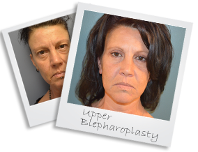 upperblepharoplasty
