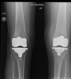 knee replacement x ray