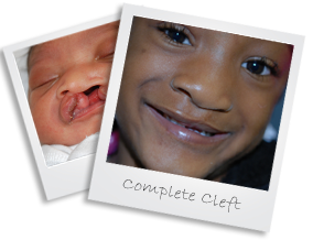 patient1 cleft