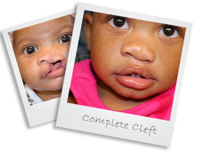 patient10completecleft