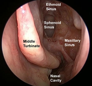 sinus cavities after polyp removal